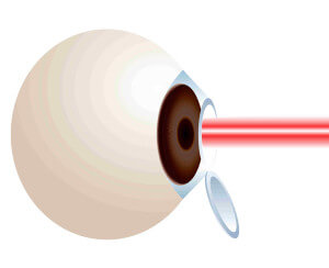 LASIK Eye Surgery Lancaster PA