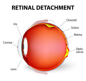 Retinal Detachment Surgery Berks County